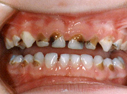 Кариес молочных зубов у детей: причины появления